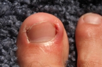 How Are Ingrown Toenails Treated?