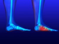 Do You Have Flat Feet?